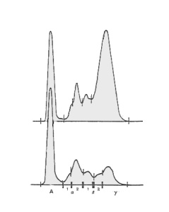 Fig. 16. Hypergammaglobulinemia in a FIP case (above)