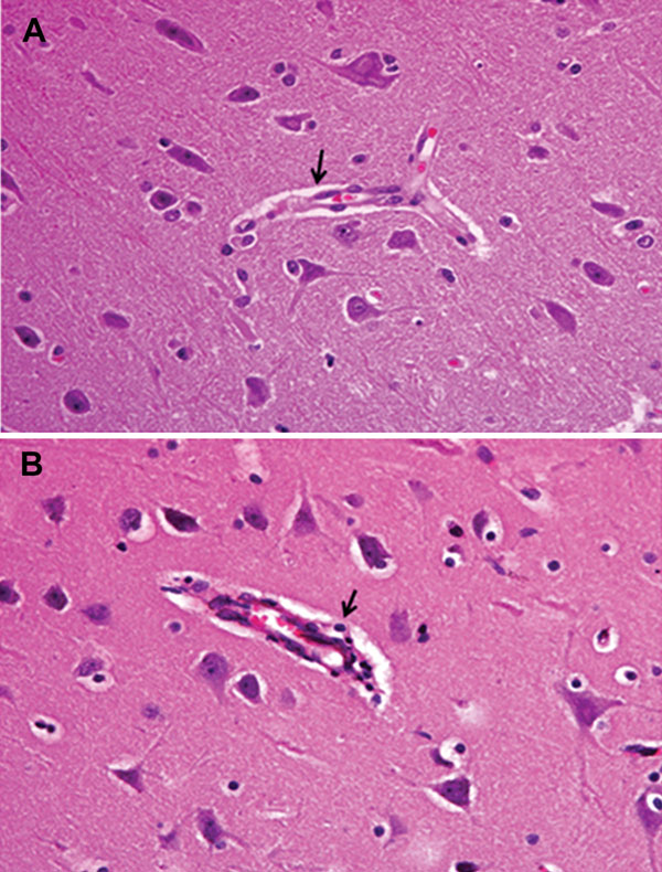 Fig. 1. Non-purulent encephalitis in a case of pseudorabies