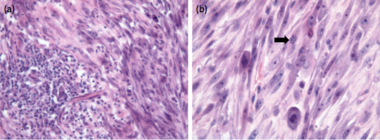 Fig. 4 Histological sections of a 2 cm diameter mass removed from the lateral thorax of a 13-year-old domestic shorthair cat. A similar interscapular mass had been removed from this cat 2 months previously. (a) A focus of lymphoplasmacytic inflammation is contained within the surrounding sarcoma. (b) Higher magnification of the neoplastic tissue reveals a pleomorphic population of neoplastic spindle cells with occasional giant nuclei and irregular mitotic activity (arrow). Haematoxylin and eosin stain. Courtesy of Michael Day, School of Veterinary Sciences, University of Bristol, United Kingdom.