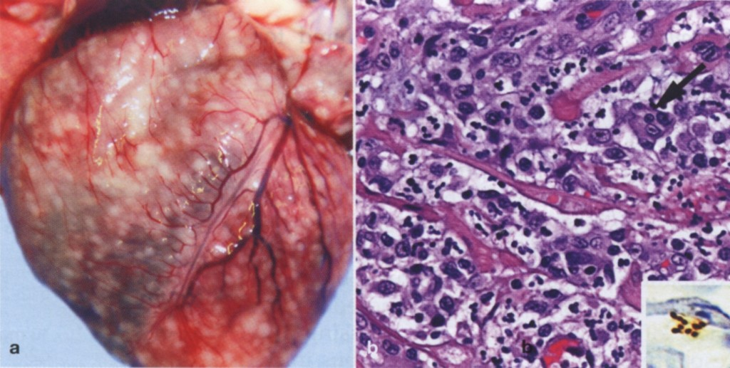 Fig. 1. Gross and histological findings in two cats from North Carolina shelter that had died after a litter of flea-infested kittens was introduced to the shelter. (a) Coalescent granulomas distributed throughout the myocardium (b) Pyogranulomatous myocarditis in an 8-month-old castrated male cat, which had been co-housed with the flea-infested kittens. Macrophages, with a rare multinucleated giant cell (arrow) are particularly numerous at the upper left of the image. Hematoxylin/eosin stain. Inset: cluster of short bacilli in an inflammatory focus are immunoreactive (brown) for B. henselae- specific monoclonal antibody. Reproduced with permission from Varanat et al., 2012