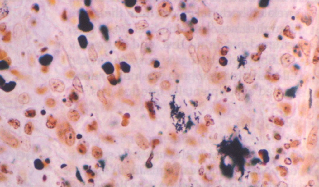 Fig. 2. Immunohistochemical identification of B. henselae in a case of cat scratch disease. Courtesy of Dharam Ramnani, Webpathology.com