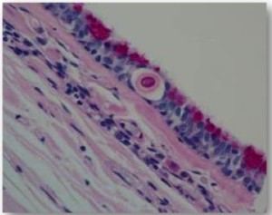 Fig. 8. Early invasion of Cryptococcus gattii into the respiratory epithelium of a koala. Note the eosinophilic body surrounded by a clear halo. Photomicrograph courtesy of Mark Krockenberger.