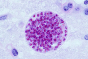 Fig. 3. Cysts develop in the tissues of many vertebrates, here in mouse brain; resting parasites (stained red) are enveloped by a thin cyst wall. Image is in the public domain, originally from the Agricultural Research Service, US Dept of Agriculture