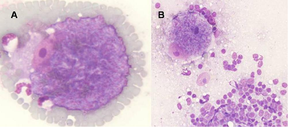 Fig. 2. C felis schizonts A) on the feathered edge of a feline blood smear and B) in a touch imprint of a peripheral lymph node from a cat with acute cytauxzoonosis. From the Merck Veterinary Manual, with permission.