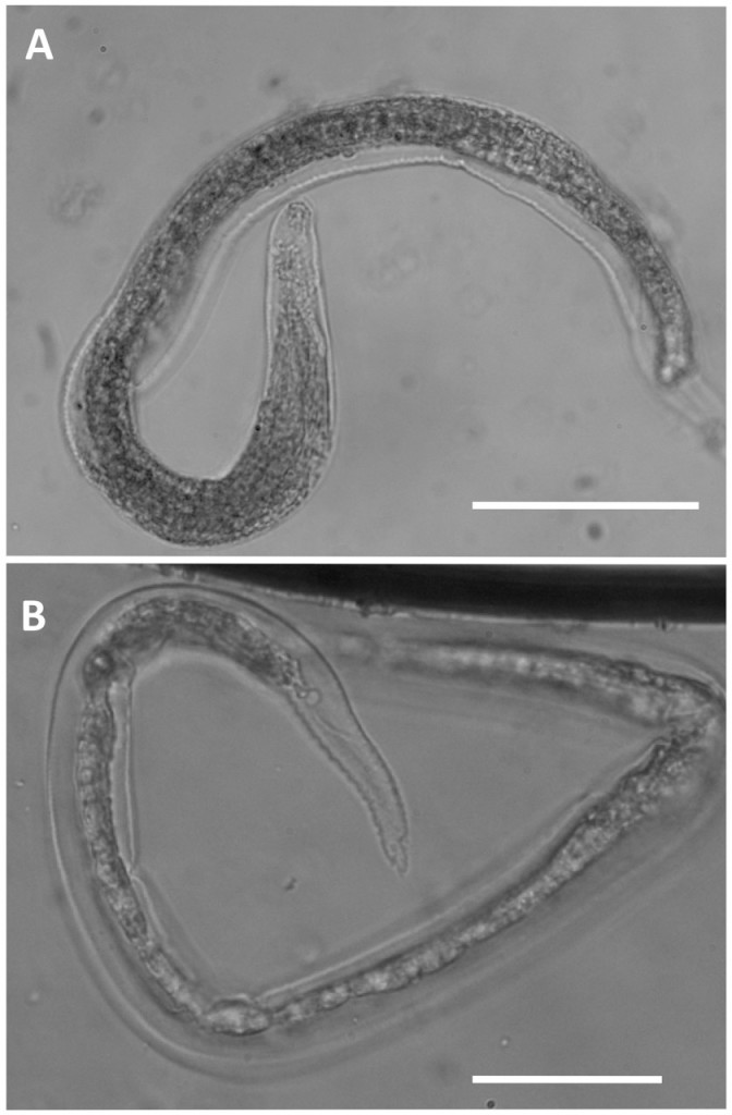 Fig. 6. Light microscopy of Oslerus rostratus first-stage larvae. Note the morphology of cephalic (A) and the caudal (B) regions. Scale bars = 100 mm. Courtesy of E. Brianti, University of Messina, Italy